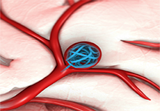 Aneurysm Disease Treatment