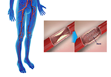 Angioplasties for Lower Limb Ischemia and Claudication