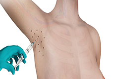 Botox Therapy for Excessive Axillary Sweating
