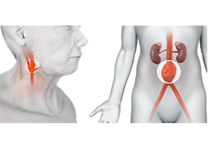 Carotid Aneurysms and Visceral Aneurysms