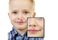 Cleft Lip and Palate Surgery