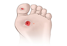 Diabetic Foot and its Complications