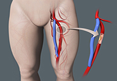Lower Limb Bypass