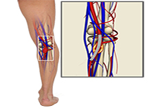 Popliteal Artery Decompression