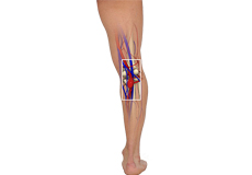 Popliteal Vein Compression